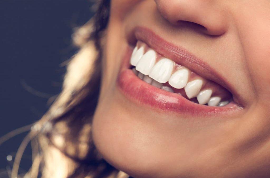 Идеальные белые зубы